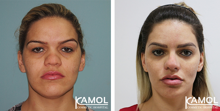 Rhinoplasty, Nose Job, Nose Surgery
