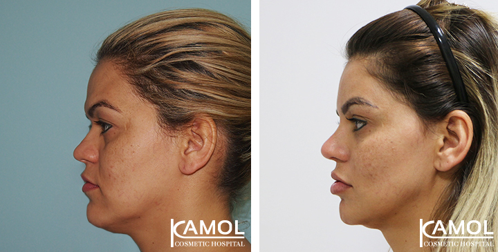 Before and After Cheekbone Augmentation,Cheek augmentation review