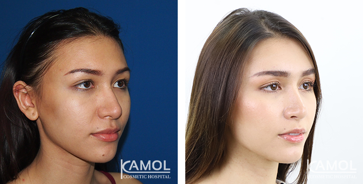 Before and After Cheekbone Reduction / Zygoma reduction
