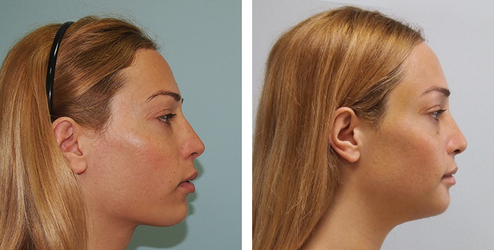 Before and After Chin Reduction