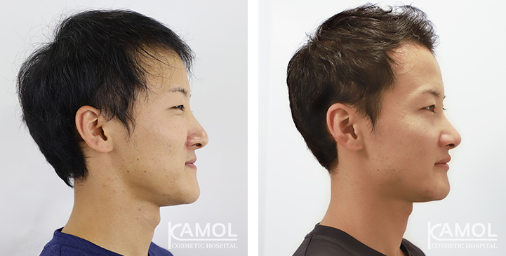 Image result for Jaw surgery