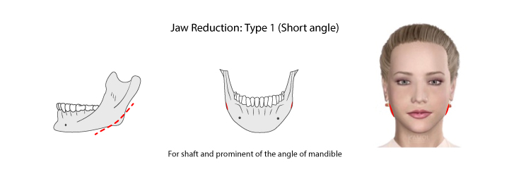 Shows Jaws reduction type 1: the shaft and prominent of the angle of the jaw.