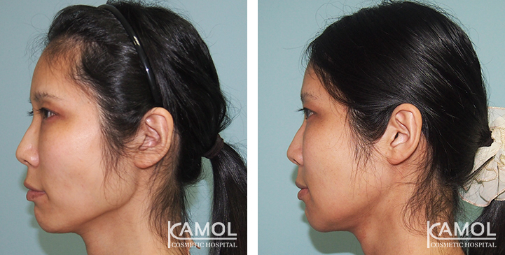 Before and After Jaw to Chin Reduction