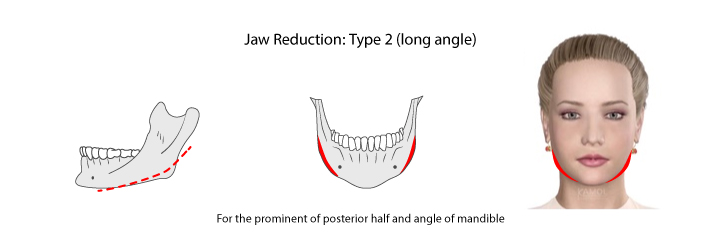Shows jaws reduction type 2: for the permanent of posterior half and angle of the mandible.
