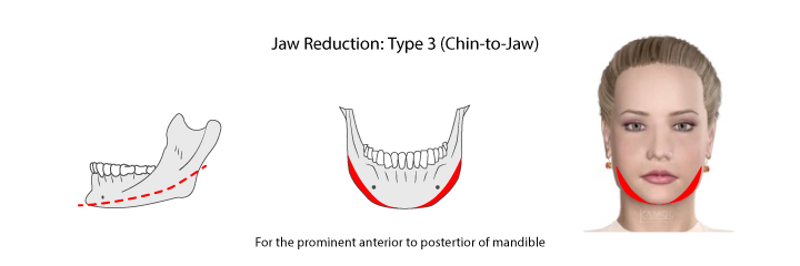 Shows jaws reduction types 3: for the prominent anterior to posterior of the mandible.