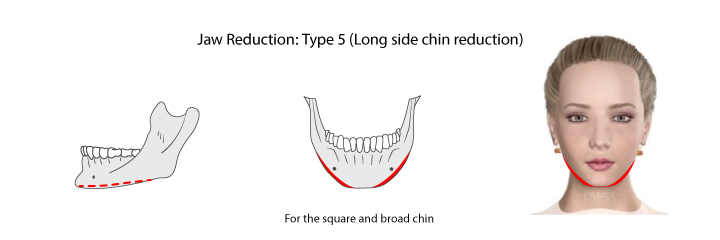 Chin reduction by resecting the bone from chin angle to the middle of the mandible
