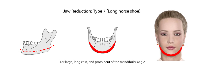 "Chin reduction by resecting from side to side of angle jaw through mandible and chin, as ""horseshoe"" reduction"