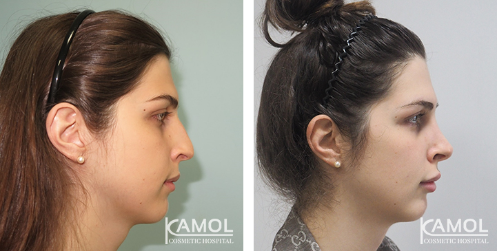Before and After 1 year surgery, Rhinoplasty, Chin Reduction, Forehead Shaving, Eyebrow Lift
