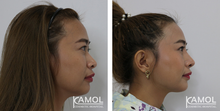 Before  & After Rhinoplasty, Nose job Thailand,Best nose job
