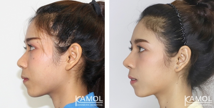 Before  & After Rhinoplasty,Nose job before after,Rhinoplasty Thailand
