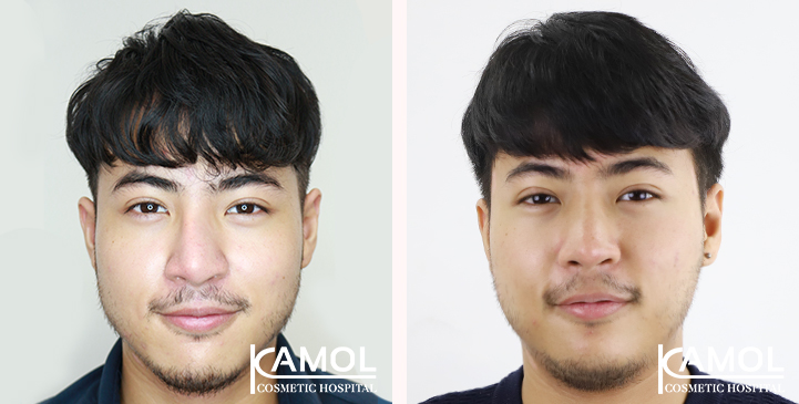 Before and After Revision Augmentation Rhinoplasy, Nose Job, Nose Surgery