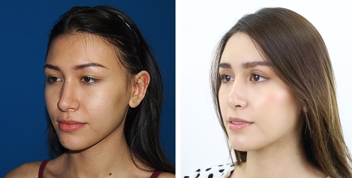Before  & After Rhinoplasty,Septoplasty before after,Nose job,Nose job Thailand