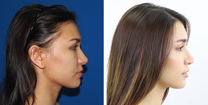 Chin Reduction, Chin Contouring