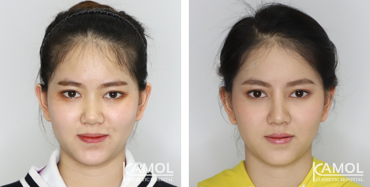 Before and After Augmentation Rhinoplasty, Nose Job, Nose Surgery