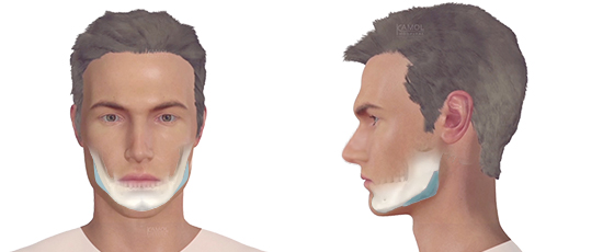 Jaw Reshaping / Jaw Augmentation