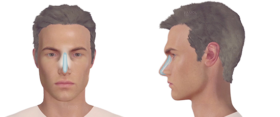 Rhinoplasty (Nose Augmentation)