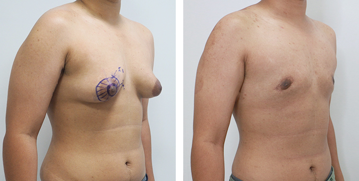 Before and After Mastectomy (Top Surgery) U-Shape Scar technique