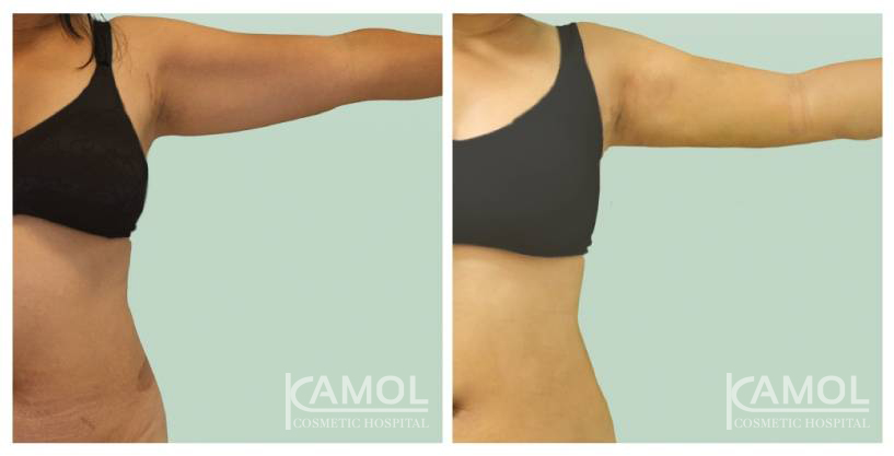 Kamol Hospital - Arms Lift before and After