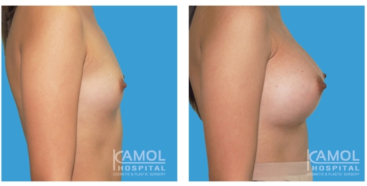 Male to Female Breast Surgery