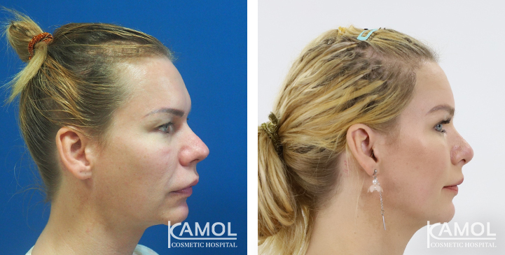 Forehead Augmentation, Hair Transplant, Face Lift, Full Face Lift, Jaw Reduction, Chin Reduction, Upper Lip Lift, Eyebrow Lift, Rhinoplasty by Rib and Cartilage