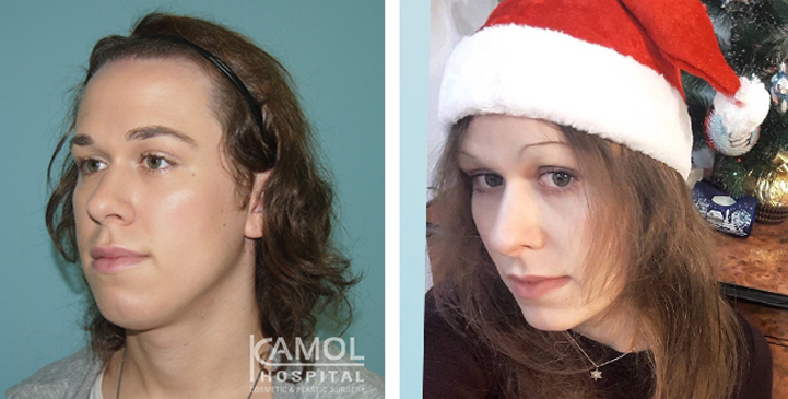 Before and After 1 month surgery, Facial Feminization Surgery, FFS,Forehead Shaving,Rhinoplasty, Hair Line Lowering, Chin Forward Sliding