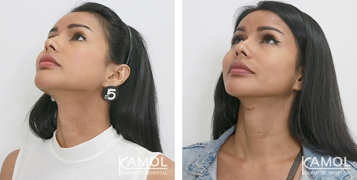 Before & After  Adam's Apple Shaving