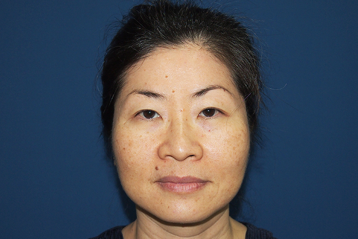 Before Upper / Lower Blepharoplasty