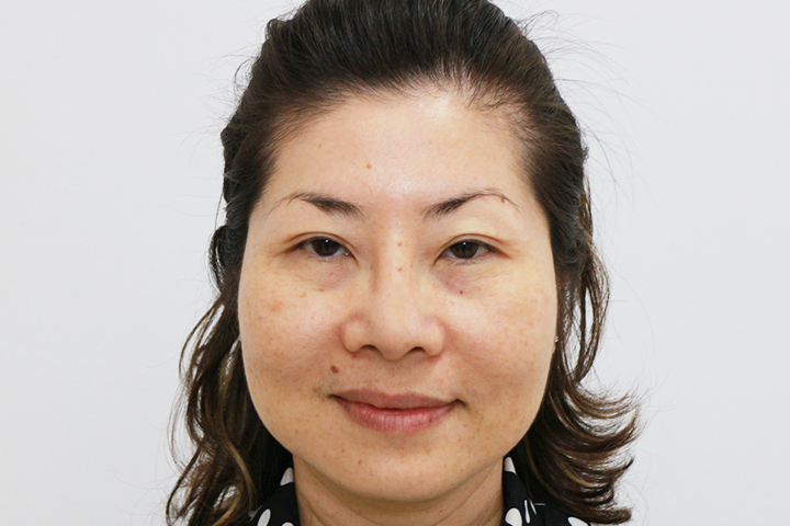 After 5 days Upper / Lower Blepharoplasty