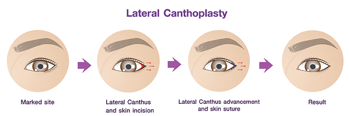 Shows Lateral Canthoplasty procedures.