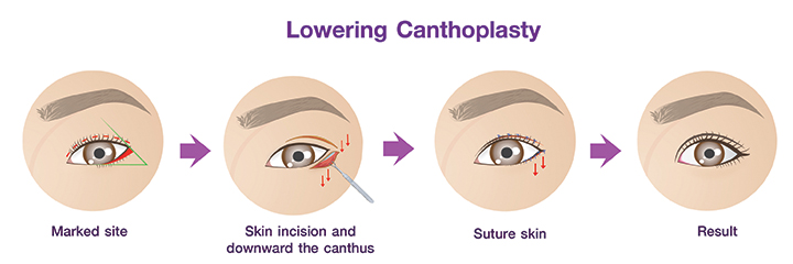 Shows Lowering Canthoplasty procedures.