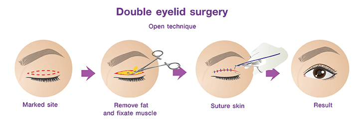 Shows the procedure for Double eyelid surgery by open technique.