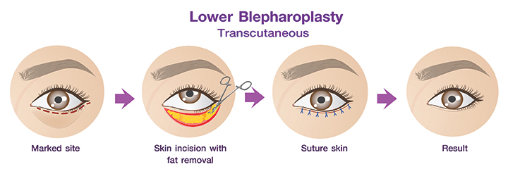 Shows the transcutaneous lower eyelid procedure