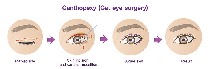 Shows Canthopexy ( Cat eye surgery) procedures.