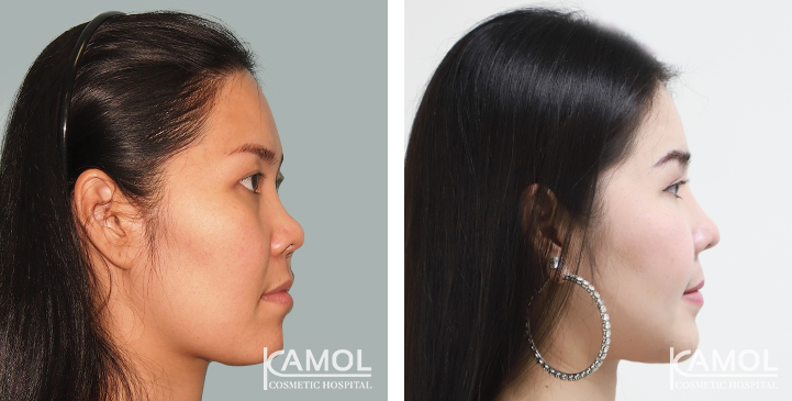 Cheekbone reduction review,Cheekbone reduction before after