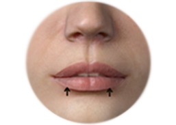 Shows the incision line and the result of lip reduction.