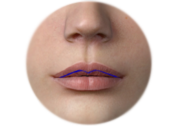 Shows the incision of Horn chestnut-shaped lips surgery and result.