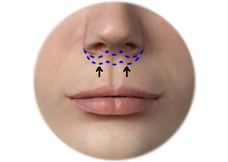 Shows the upper lip lift with the Sub Nasal Bullhorn technique.