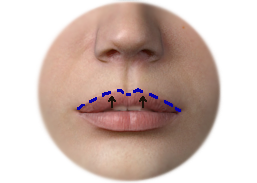 Shows Upper lip lift incision with direct lip technique.