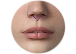 Shows Phitrum enhancement  with V-shave scar
