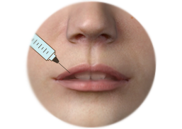 Shows Lips Enhancement by filler injection