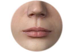 Shows Lip surgery by augmentation with the Acellular dermal matrix