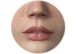 Shows Lips Enhancement by Fat Graft