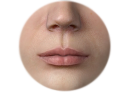 Shows the incisions and results of Lip surgery by Corner Lip Lift