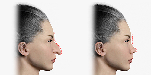 Shows before and after rhinoplasty by drooping nose tip correction