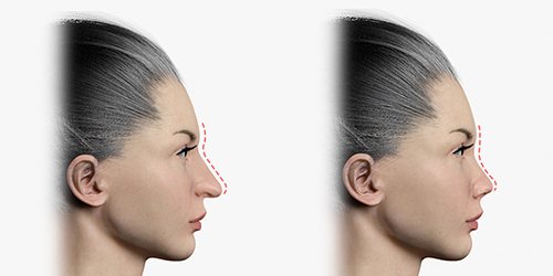 Shows before and after rhinoplasty by reducing the length of the nasal tip