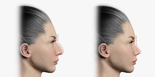 Shows before and after rhinoplasty by reducing the height of the nose bridge
