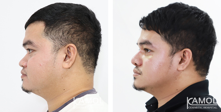 Before  & After Rhinoplasty, Nose Implant,Rhinoplasty,Rhinoplasty Thailand