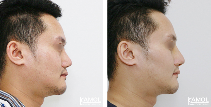 Before  & After Rhinoplasty