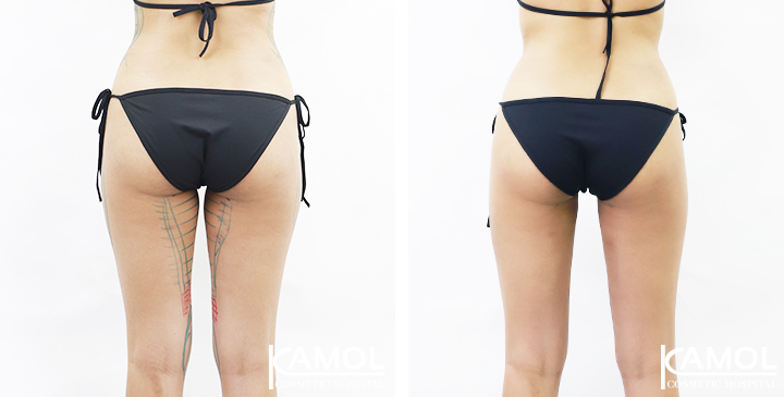 Thighs Liposuction