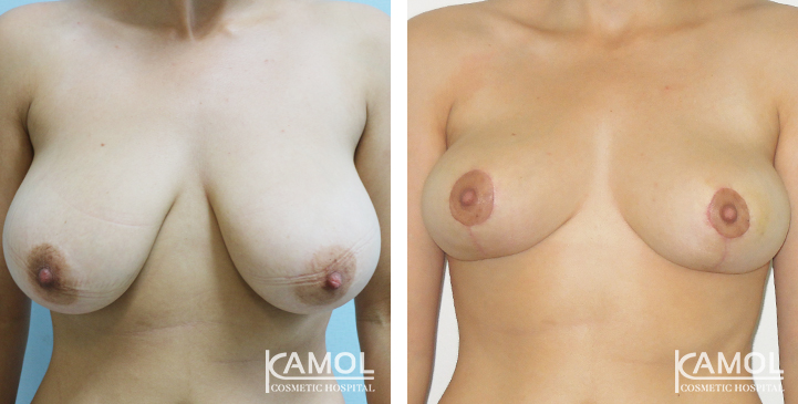 Breast revision before after, Breast lift before after, Breast review, Breast picture, Breast reduction , Breast reduction Thailand, Breast reduction before after, Breast reduction surgeon, Best breast reduction, Breast before after